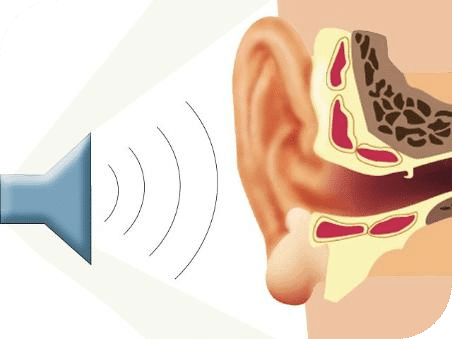 Problemas auditivos